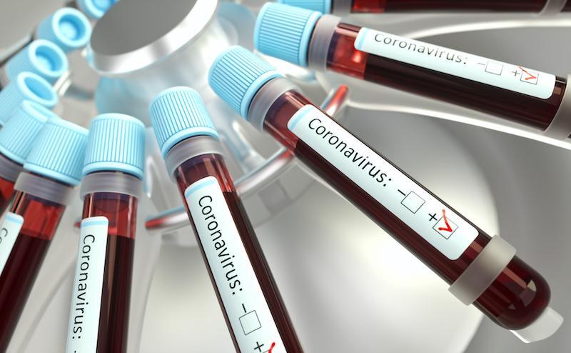 Photo of Как швейцарские компании реагируют на коронавирус в Китае